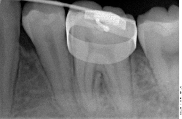 牙齿素描图片步骤
